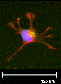 Podocyte stained red for actin and blue for the nucleus